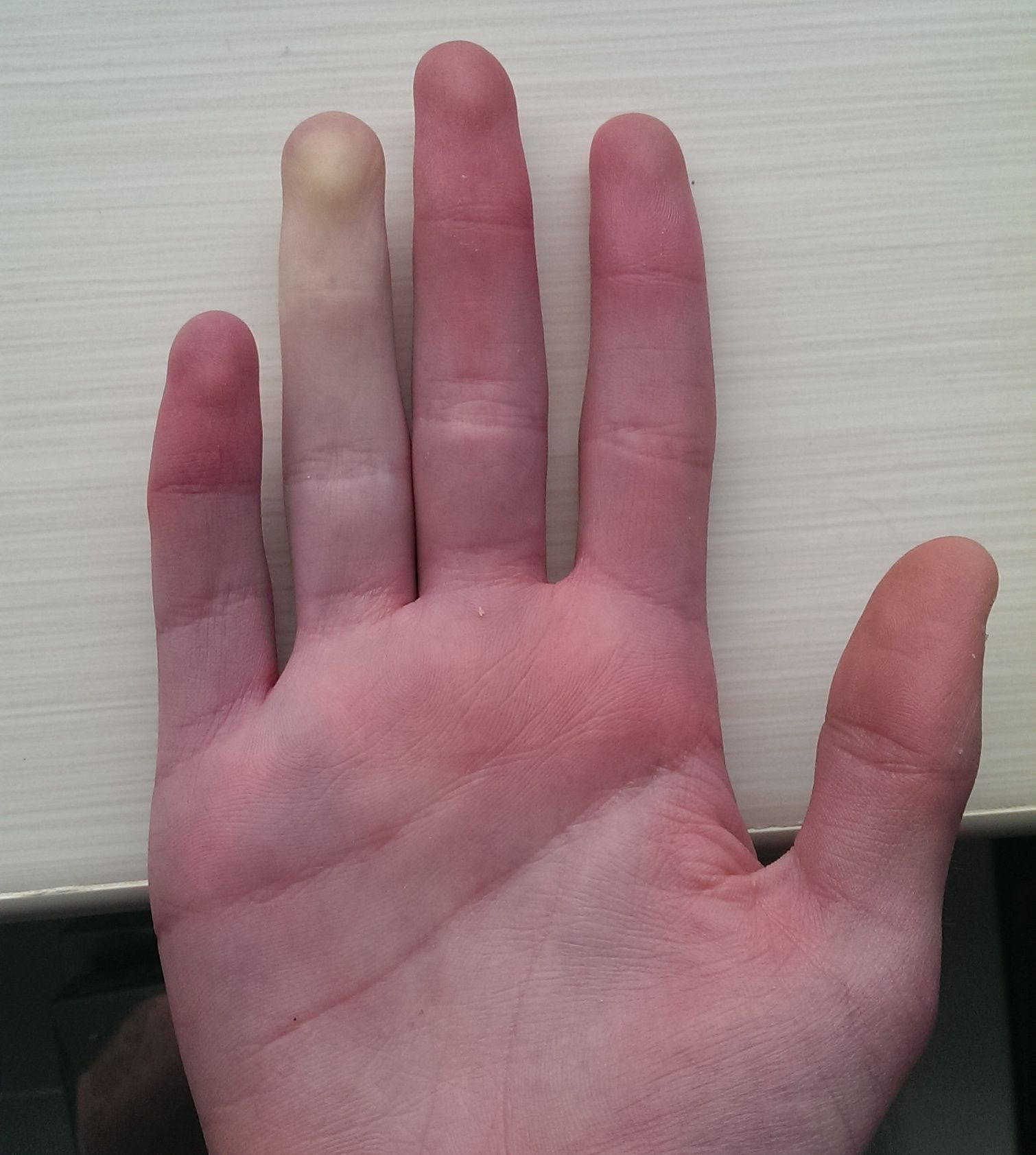 drętwy palec - mrowienie